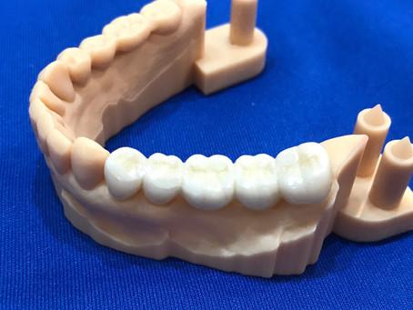 セラミックの義歯