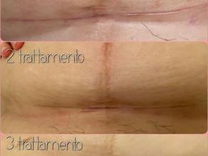 La testimonianza di 2 cicatrici che si intersecano ...