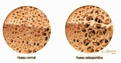 Biologická léčba Osteoporózy