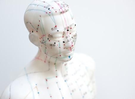 מחקר: דיקור סיני יעיל יותר מגלולות שינה