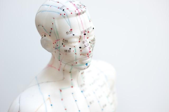 דיקור סיני יעיל יותר מכדורי שינה לטיפול באינסומניה