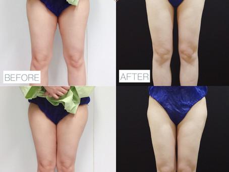 夏季免遮肉,穿回短褲的確幸!大腿臀部抽脂,修臀線成功見證!!
