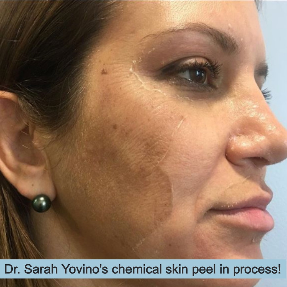 Woman in the process of having a chemical skin peel.