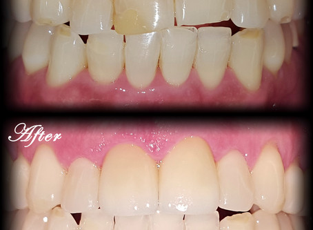 Can changing your smile improve the quality of your life?