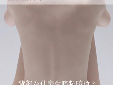 【背部為什麼生暗粒暗瘡 ? 】