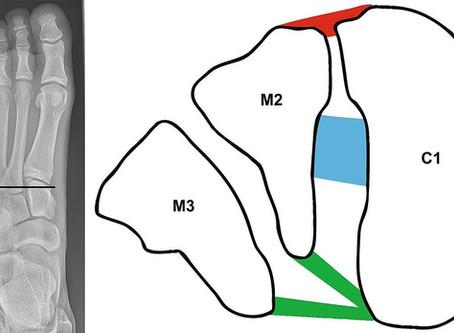 Ankle Injuries - Lisfranc