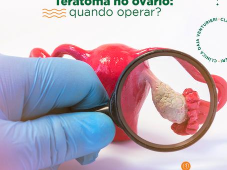 Teratoma no ovário: quando operar?