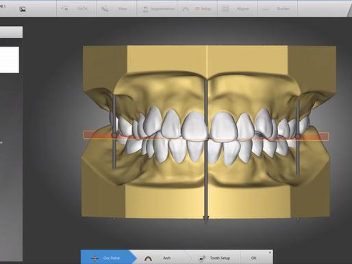AUTOLIGN 세계최초 치아 자동 정렬 3D 교정 소프트웨어