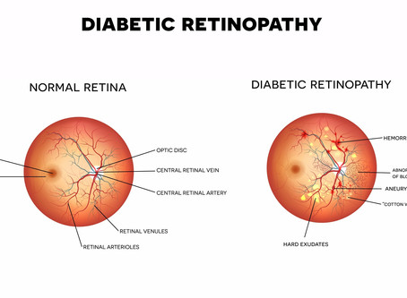 Diabetes and its affect on Vision