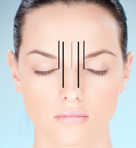 Brow Mapping