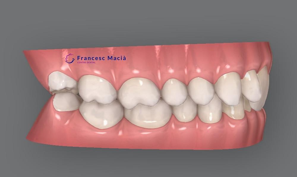 Clase I dental con sobremordida