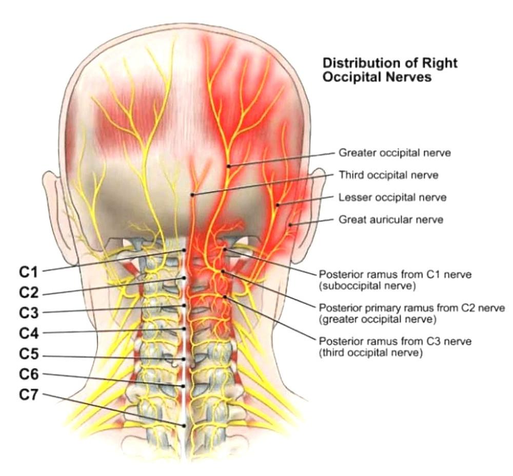 occipital neuralgia treatment