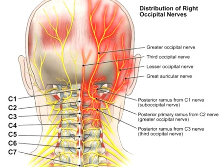 Occipital neuralgia and MLT