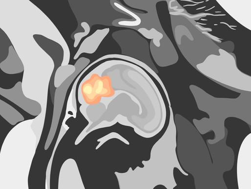 The Mythical Correlation of Influenza and Schizophrenia
