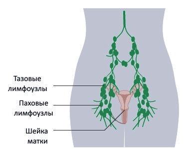 Паховые лимфоузлы