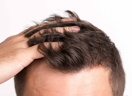 How to deal with hair fall like a 'PRO'