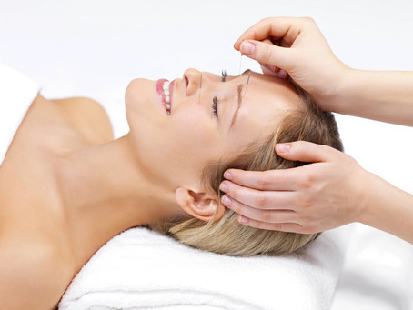 What is Acupuncture? How does Acupuncture work?