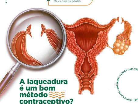 A laqueadura é um bom método contraceptivo?