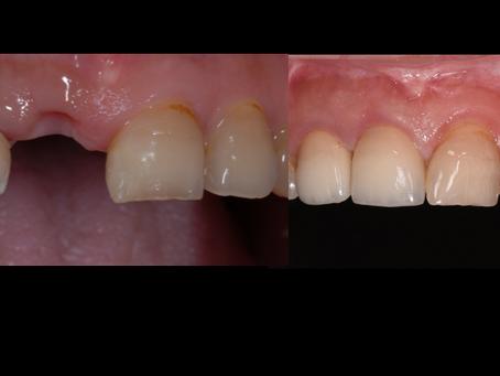 前歯1本のインプラント