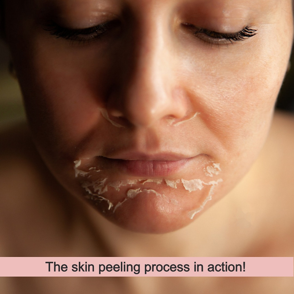 Woman in the process of having a skin peel.