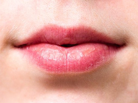 What's the Best Way to Prevent a Dry Mouth?