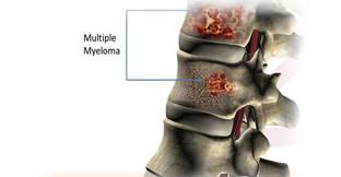 Multiple Myeloma- killing our community