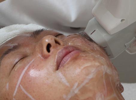 Kan HIFU behandlingar ersätta ansiktslyft?