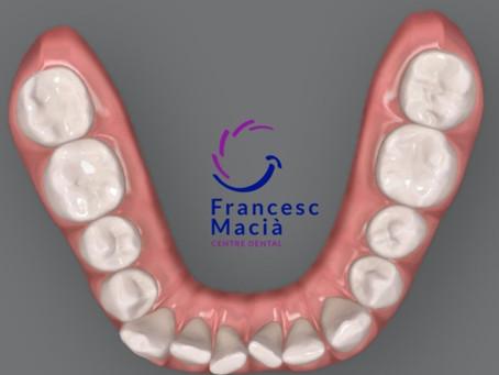 Apiñamiento Dental: Qué es y cuándo tratarlo