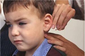 Acupunctuur bij kinderen