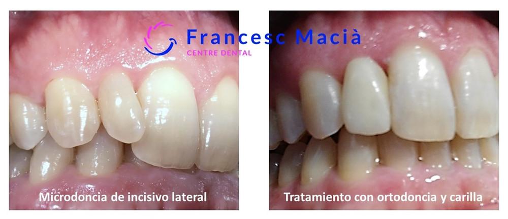 Tratamiento de microdoncia dental