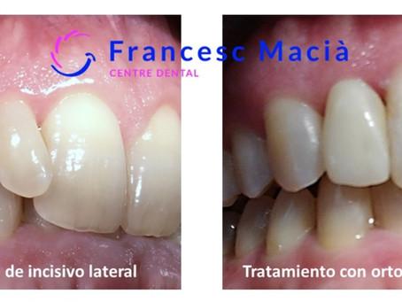 Microdoncia y macrodoncia; qué es, porqué ocurre y cómo tratarla.