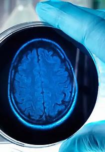 brain in a dish.png