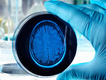 Human brain organoids: Between hype and reality