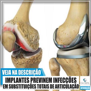 Novos implantes previnem infecções em substituições totais de articulação.