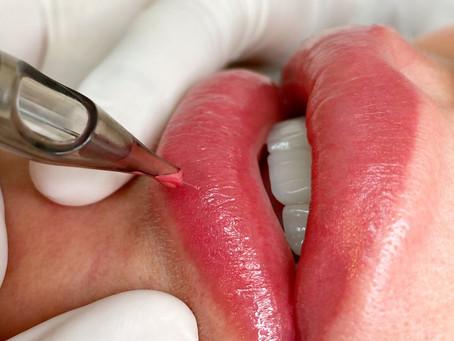 O passo a passo do procedimento de lábios