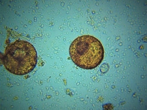 Here's an Arcella amoeba. It reminds us how far soil biology has yet to go.
