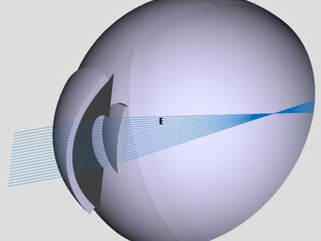 Уникнення помилок післяопераційної рефракції та формул розрахунку ІОЛ.