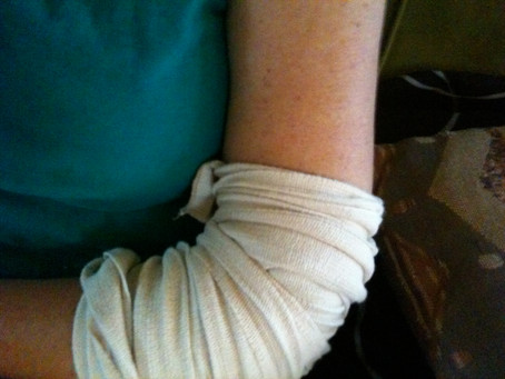 Can SocksLane Elbow Compression Sleeve Relieve Tennis Elbow or Golfer's Elbow?