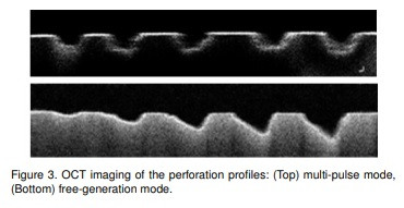 Experimental Study on the Effect of Nd: YAG Laser on Dental Hard Tissue