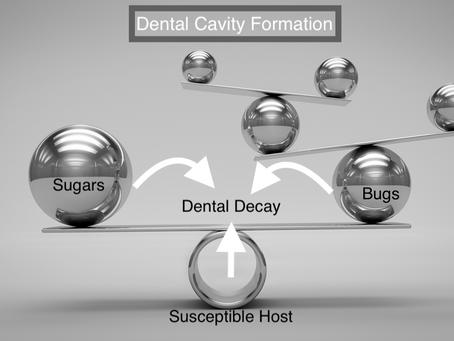 Story Of Dental Cavities