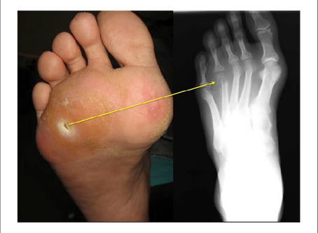 Osteomyelitis in Non-Healing Diabetic Foot Ulcers: