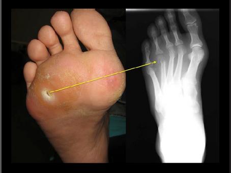 Osteomyelitis in Non-Healing Diabetic Foot Ulcers: