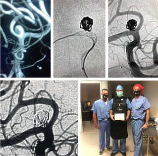 Wide Necked MCA Aneurysm Assisted by Comaneci 17