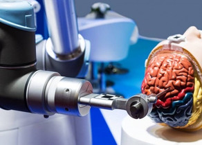 İlk Defa Bir Robot Tarafından Beyin Anevrizmaları Tedavi Edildi