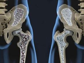 OSTEOPOROSIS. Una enfermedad silenciosa.