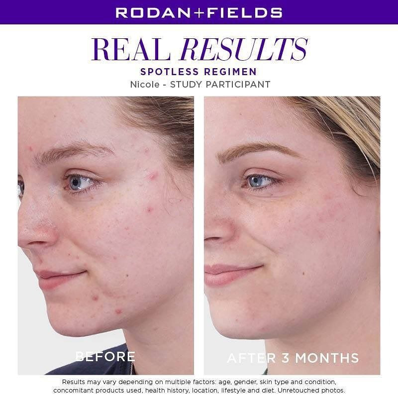 Rodan and Fields | Audrey Anderson World