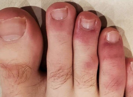 """""""Covid-Toes"""""""