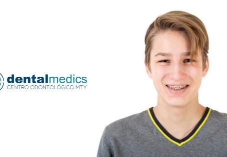 ¿Existe una edad ideal para llevar ortodoncia?
