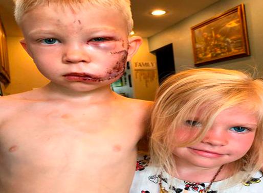 Niño de 6 años salva a su hermana menor de brutal ataque de perro