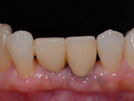 下顎前歯セラミック